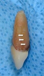 Vertical root fracture