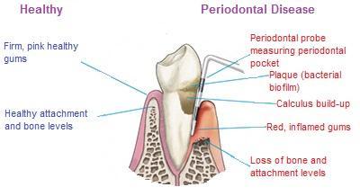 healthy-gums-vs-periodontal-disease